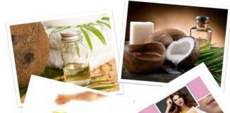 chữa bệnh tuyến giáp bằng dầu dừa