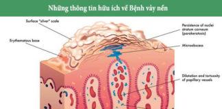 Cách điều trị bệnh vẩy nến Guttate hiệu quả