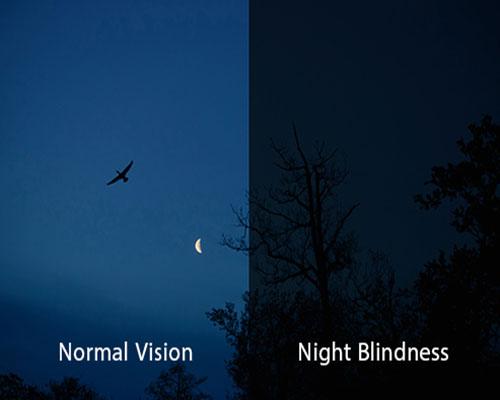 Đôi mắt nói điều gì về sức khoẻ của bạn