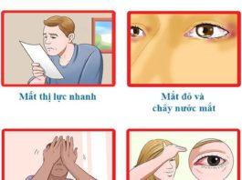 Bệnh tăng nhãn áp - cườm nước (Glaucoma)