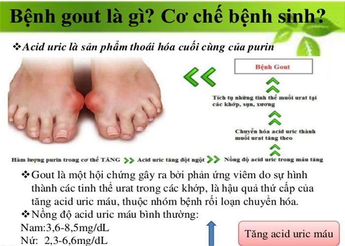 Bệnh Gút nguyên nhân cơ chế bệnh sinh và phân loại gút