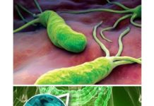 Vi khuẩn H. Pylori gây ra bệnh tiêu chảy