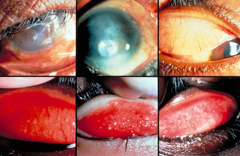 Bệnh đau mắt hột cách phòng tránh và điều trị