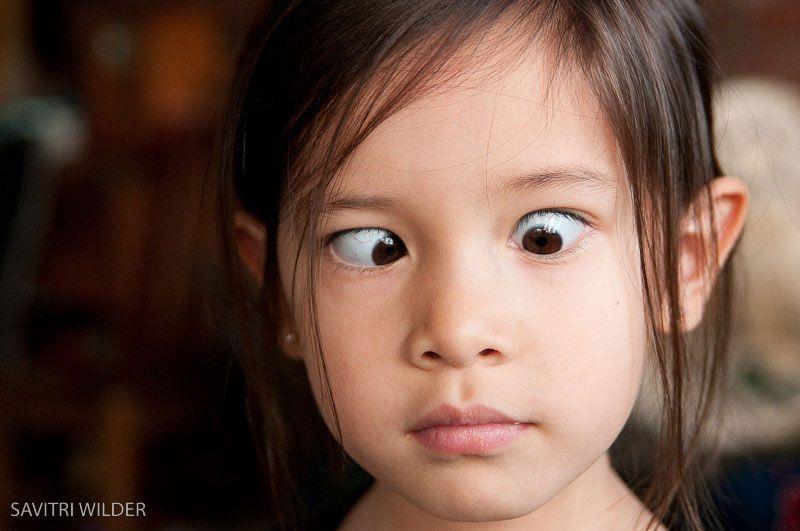 Bệnh về mắt ở trẻ em thường gặp nhất