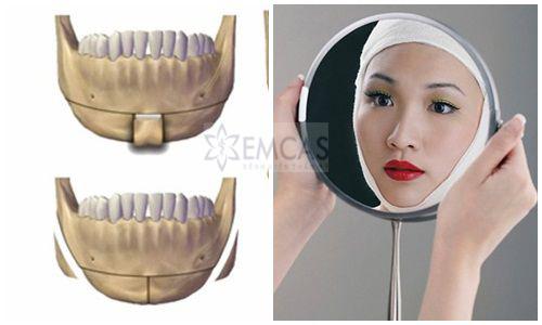 EMCAS gọt hàm 3D Vline tạo khuôn mặt quyến rũ