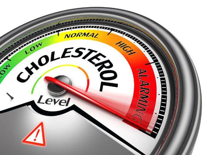 25-cholesterol1