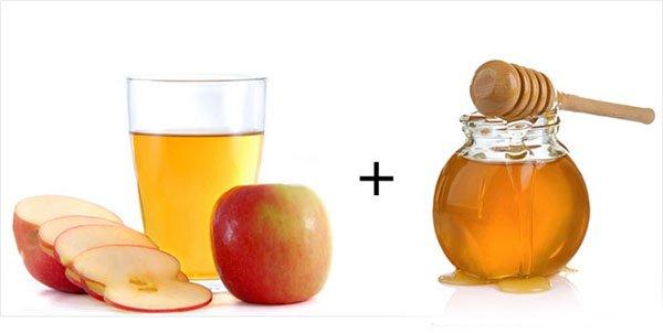 Rượu giấm táo trị sỏi thận