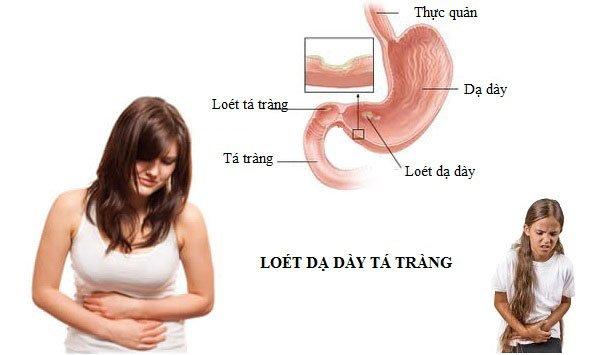 khi bịViêm loét dạ dày
