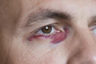Mẹo hay chữa mắt bầm tím hiệu quả