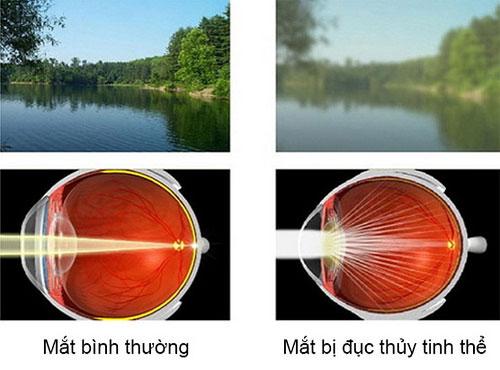 Bệnh đục thủy tinh thể nguyên nhân tiềm ẩn gây mù lòa ?