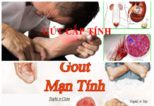 Chẩn đoán bệnh gút và điều trị bệnh gút tại Việt Nam