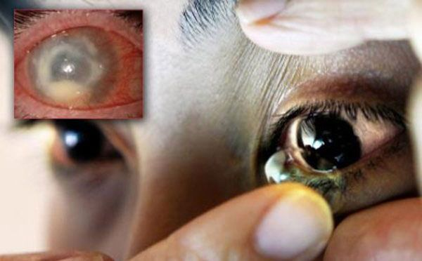 Hương Tràm bị viêm giác mạc sâu do sử dụng kính áp tròng không đúng cách