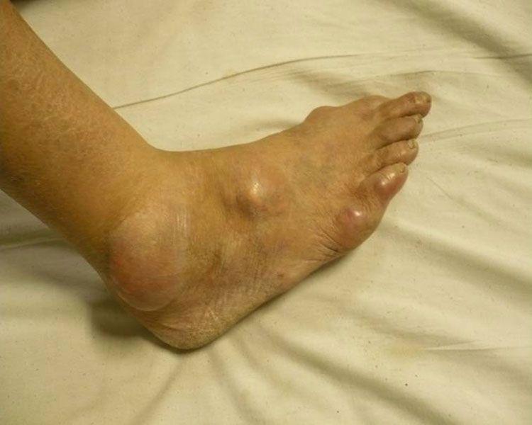 Triệu chứng bệnh gút và biểu hiện bệnh gút