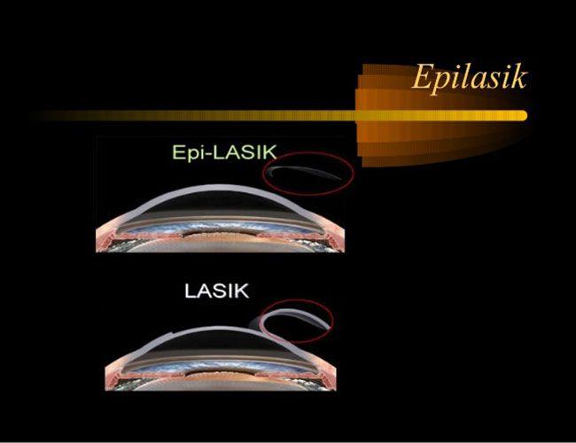 Hướng dẫn đầy đủ về Phẫu thuật Epi-LASIK