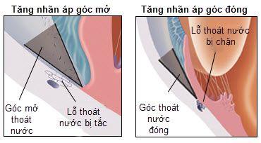 Bệnh tăng nhãn áp: Triệu chứng và phòng ngừa