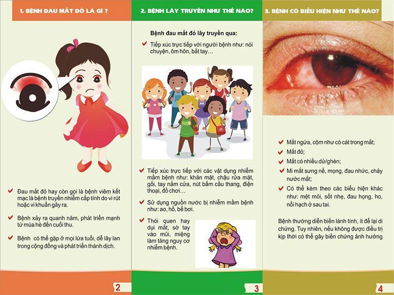 Điều trị và phòng ngừa đau mắt đỏ (viêm kết mạc)
