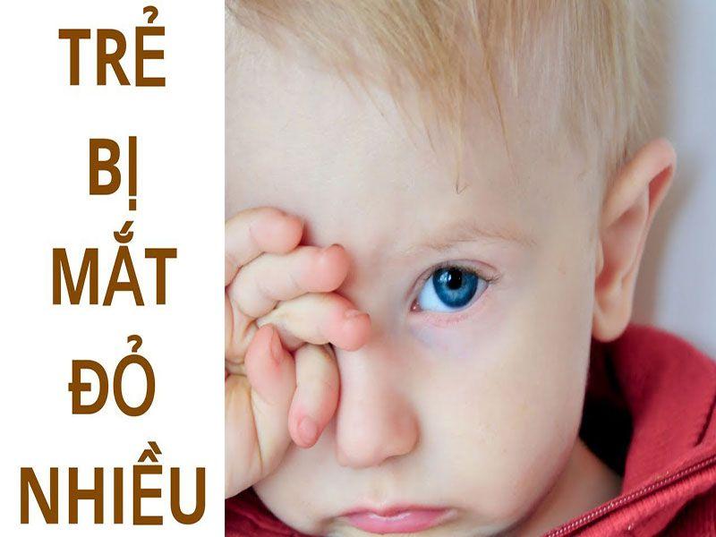 8 câu hỏi thường gặp về đau mắt đỏ