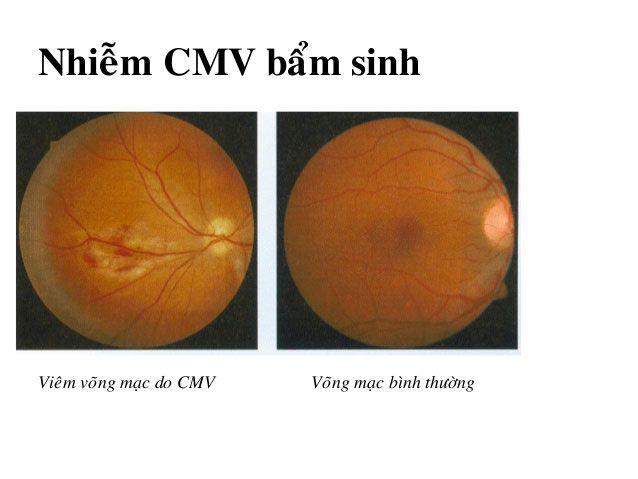 Giảm nguy cơ mắc các bệnh về mắt và duy trì đôi mắt khỏe mạnh