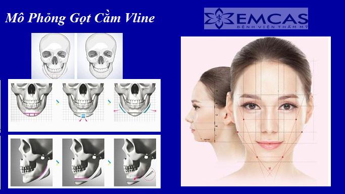 EMCAS GỌT CẰM VLINE 3D HÀN QUỐC