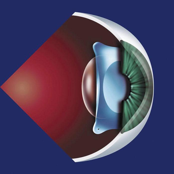 Phẫu thuật Phakic ICL kinh nghiệm mổ mắt dành cho người cận thị nặng giác mạc mỏng