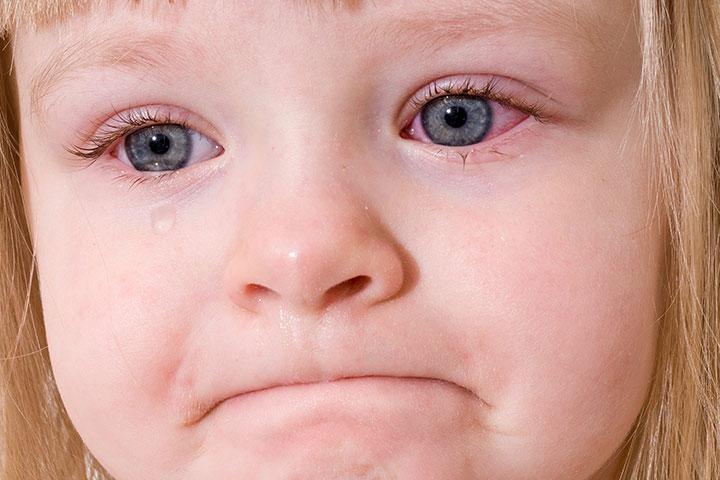 hình ảnh đau mắt đỏ ở trẻ em