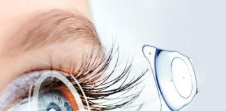 Review mổ mắt Phakic ICL Bệnh Viện Mắt Quốc Tế Nhật Bản