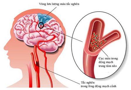 Đột quỵ: Nguyên nhân, dấu hiệu nhận biết, cách phòng tránh
