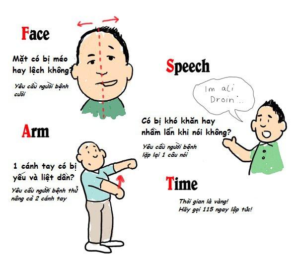 Đột quỵ: Nguyên nhân, dấu hiệu nhận biết, cách phòng tránhĐột quỵ: Nguyên nhân, dấu hiệu nhận biết, cách phòng tránh